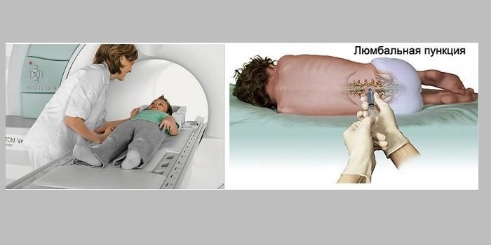 Ребенок в аппарате МРТ и люмбальная пункция