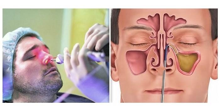 Пункция носовых пазух