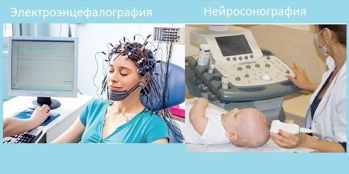 Диагностика паралича