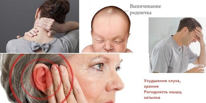 Признаки заражения менингитом