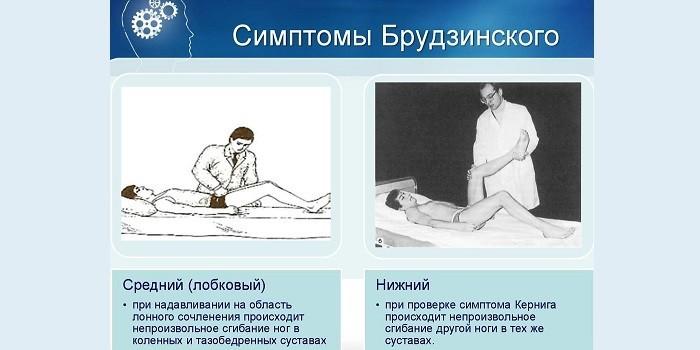 Симптомы Брудзинского