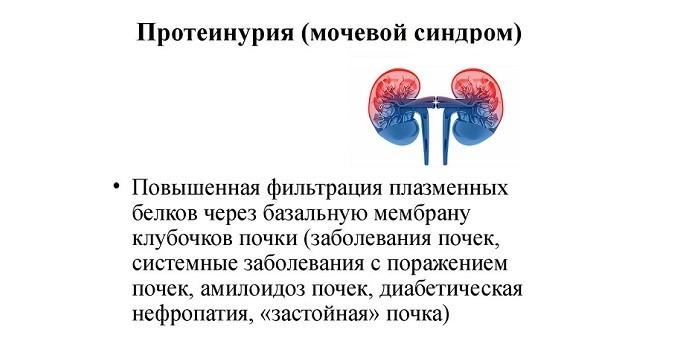 Протеинурия