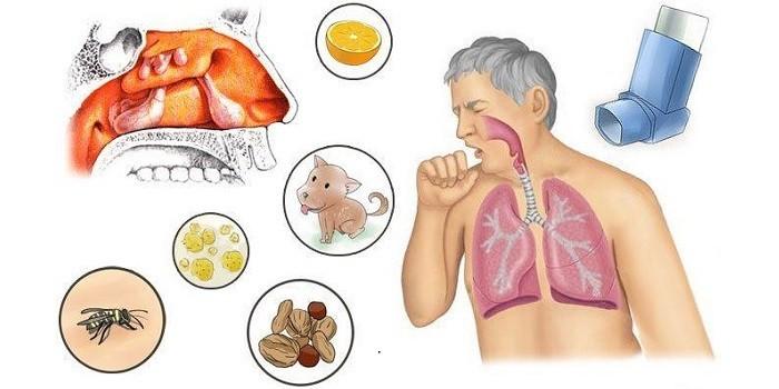 Причины аллергических реакций