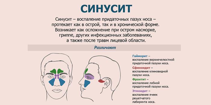 Определение синусита