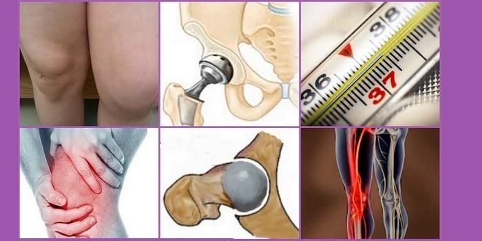 Осложнения после эндопротезирования