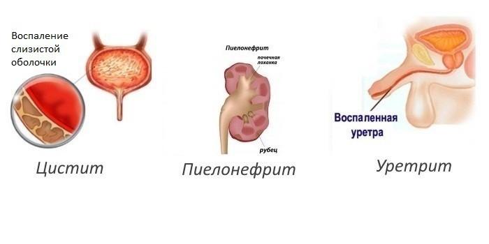 Цистит, пиелонефрит и уретрит