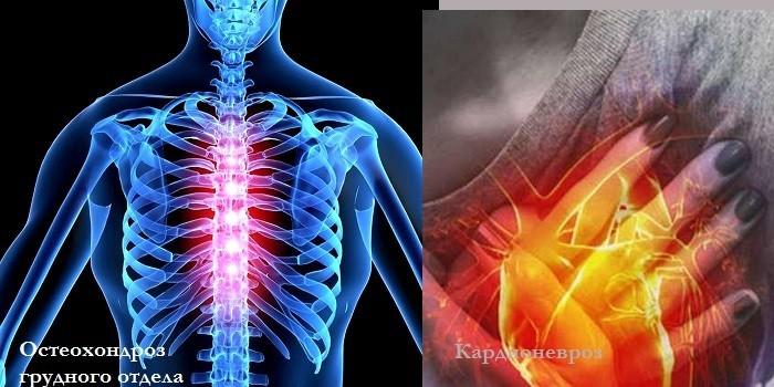 Остеохондроз грудного отдела и кардионевроз