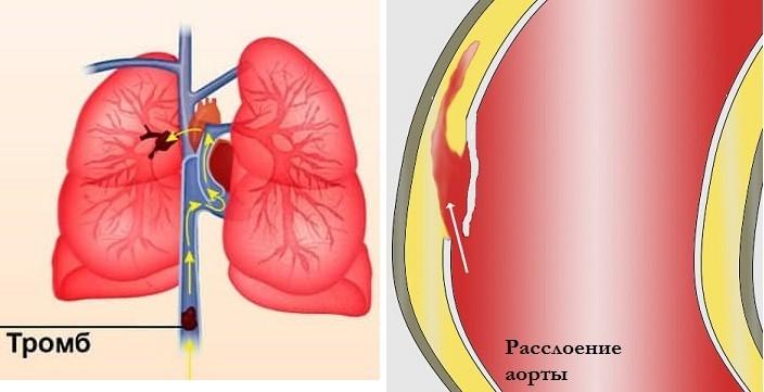Тромб и расслоение аорты
