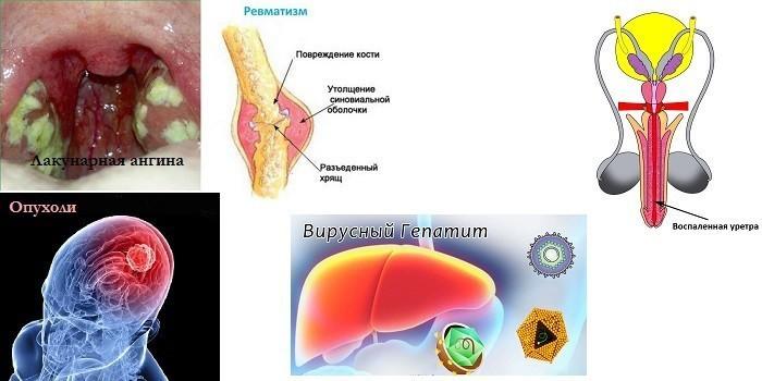 Лакунарная ангина, ревматизм, опухоли и вирусный гепатит