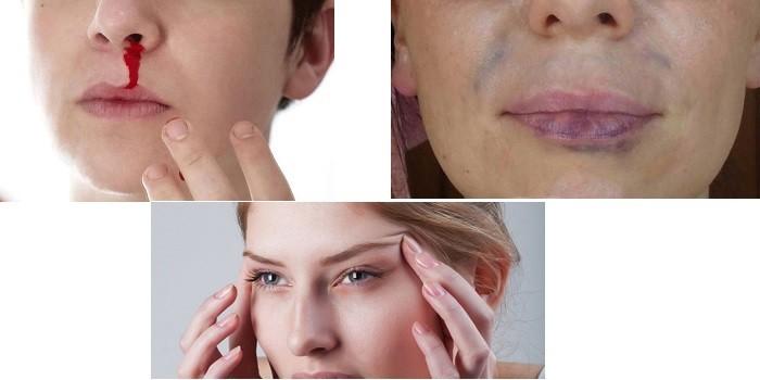 Кровотечение из носа, гематомы на лице и головная боль