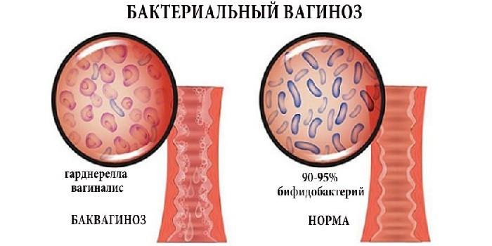 Бактериальный вагиноз и норма