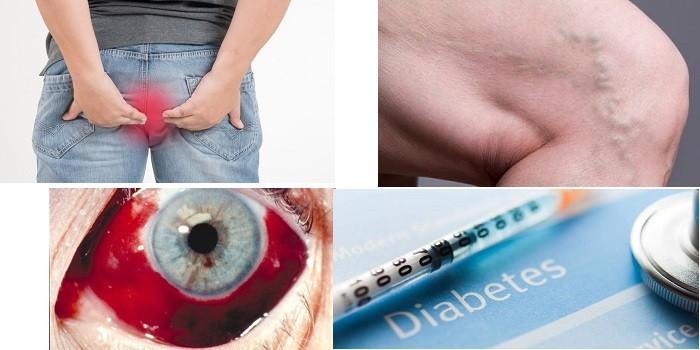 Геморрой, варикоз, кровоизлияние в глаз и диабет