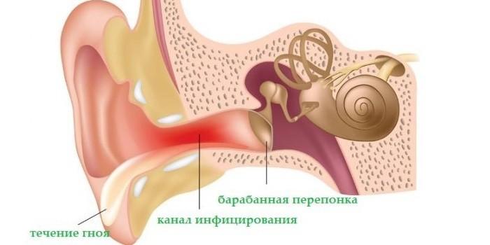 Гнойные выделения из слухового канала