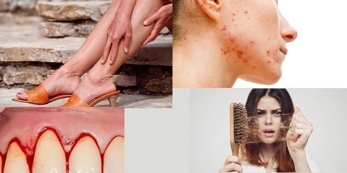 Боли в икроножных мышцах, высыпания на лице, кровоточивость десен и выпадение волос