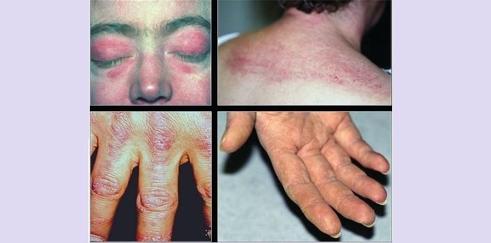 Разновидности дерматомиозита