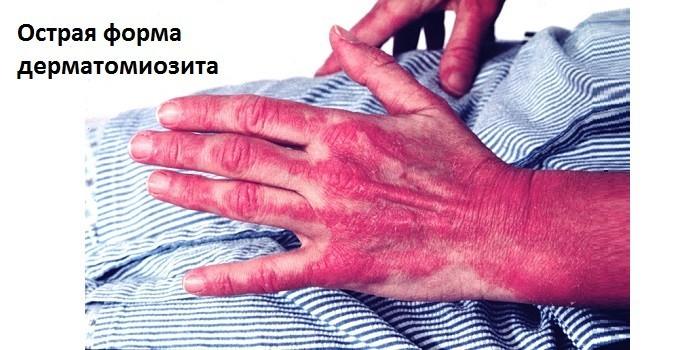 Симптомы дерматомиозита в острой форме