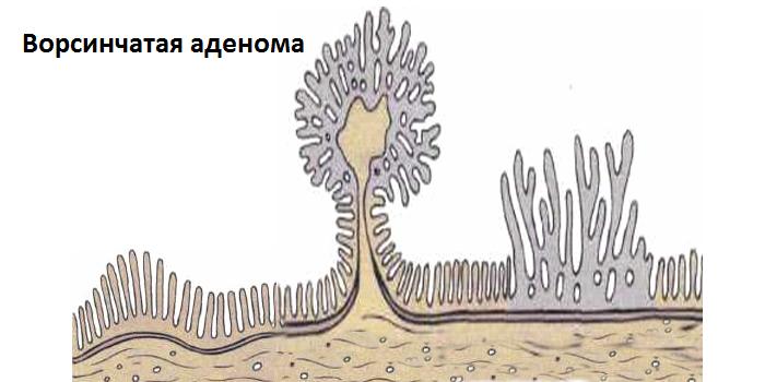 Ворсинчатая аденома