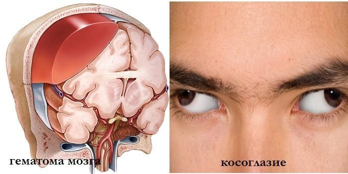 Гематома мозга и косоглазие