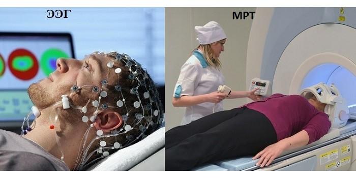 ЭЭГ и МРТ обследования