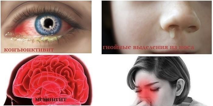 Конъюнктивит, менингит, гнойные выделения и боли в носу