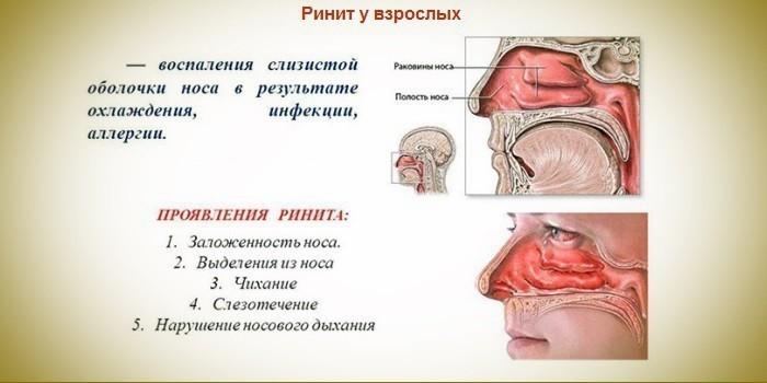 Симптомы ринита у взрослых