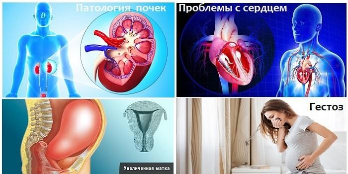 Патология почек, проблемы с сердцем, увеличенная матка и гестоз