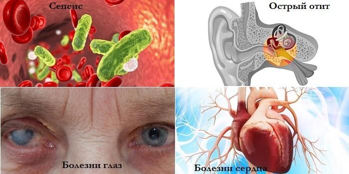 Сепсис, острый отит, болезни глаз и сердца