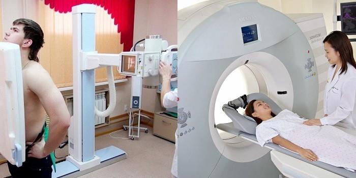 Люди проходят рентген и МРТ