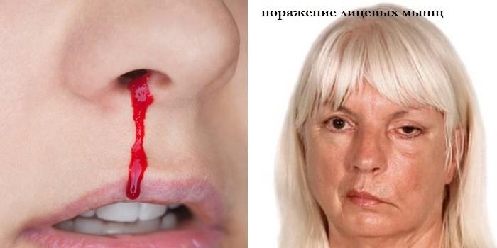 Носовое кровотечение и поражение лицевых мышц