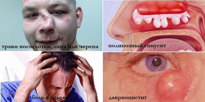 Травмы носоглотки, полипозный синусит, дакриоцистит и головные боли