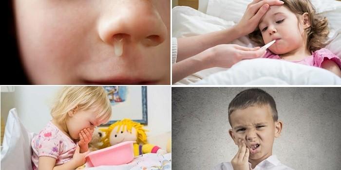 Насморк, температура, рвота и лицевые боли