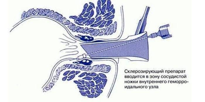 Процедура склеротерапии