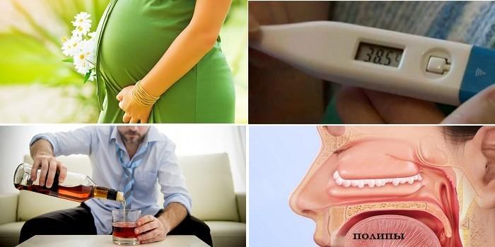 Беременность, высокая температура, прием алкоголя и полипы в носу