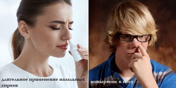 Длительное применение сосудосуживающих и ковыряние в носу