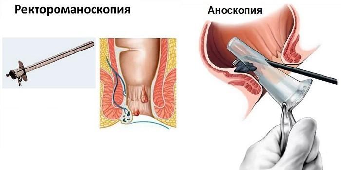 Ректороманоскопия и аноскопия