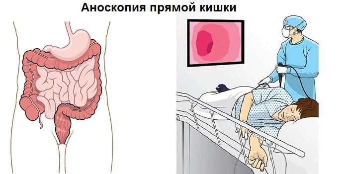 Аноскопия прямой кишки