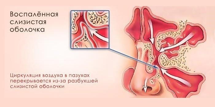 Воспаленная слизистая оболочка