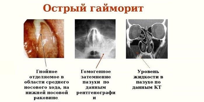 Проявления острой формы заболевания