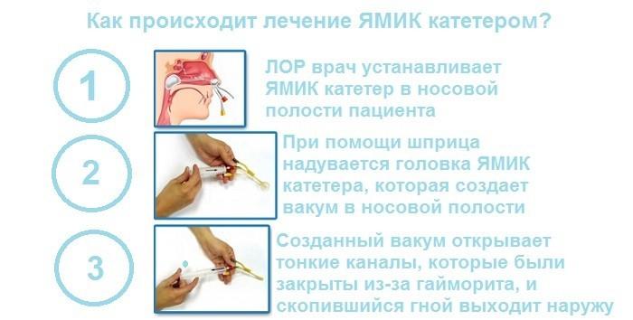 Лечение ЯМИК катетором