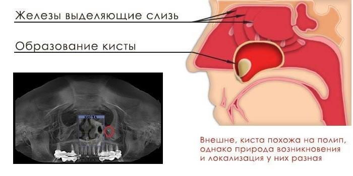Виды кистозных образований