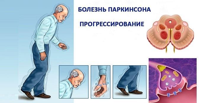 Симптомы прогрессирования болезни Паркинсона