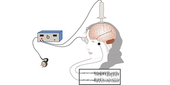 Принцип электросудорожной терапии