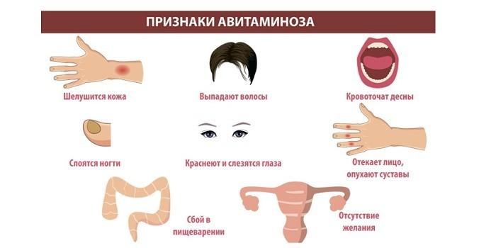 Симптоматика авитаминоза