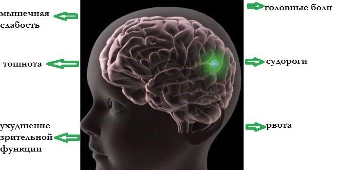 Признаки поражения паразитом мозга