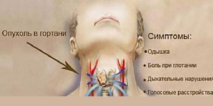 Опухоли гортани