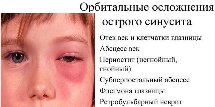 Орбитальные осложнения острого синусита