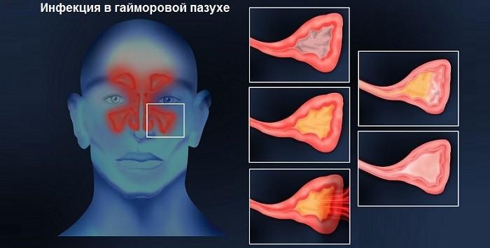 Признаки  инфекции в гайморовых пазухах