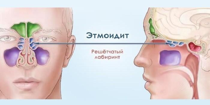 Воспаление решетчатого лабиринта