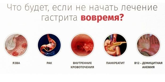 Последствия, если не начать вовремя лечение