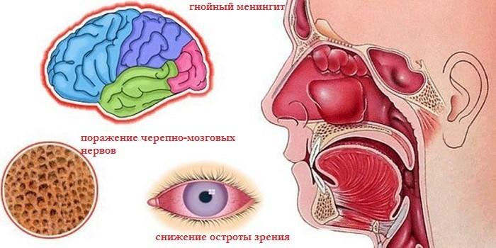 Осложнения сфеноидита